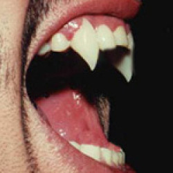 Get your fangs in New Orleans