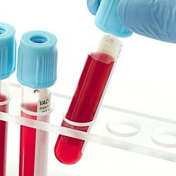 First Synthetic Blood Transfusion Set for 2017